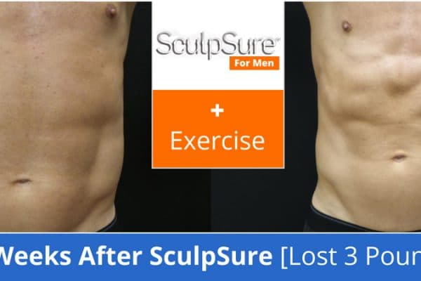 sculpsure_plus_exercise_before_and_after