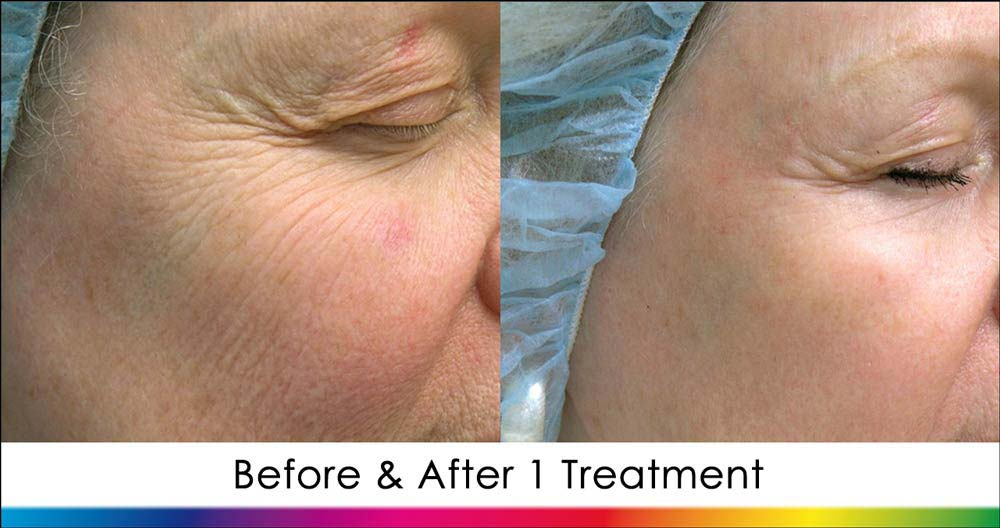 Ablative Laser Skin Rejuvenation New Radiance Cosmetic Center St. Lucie