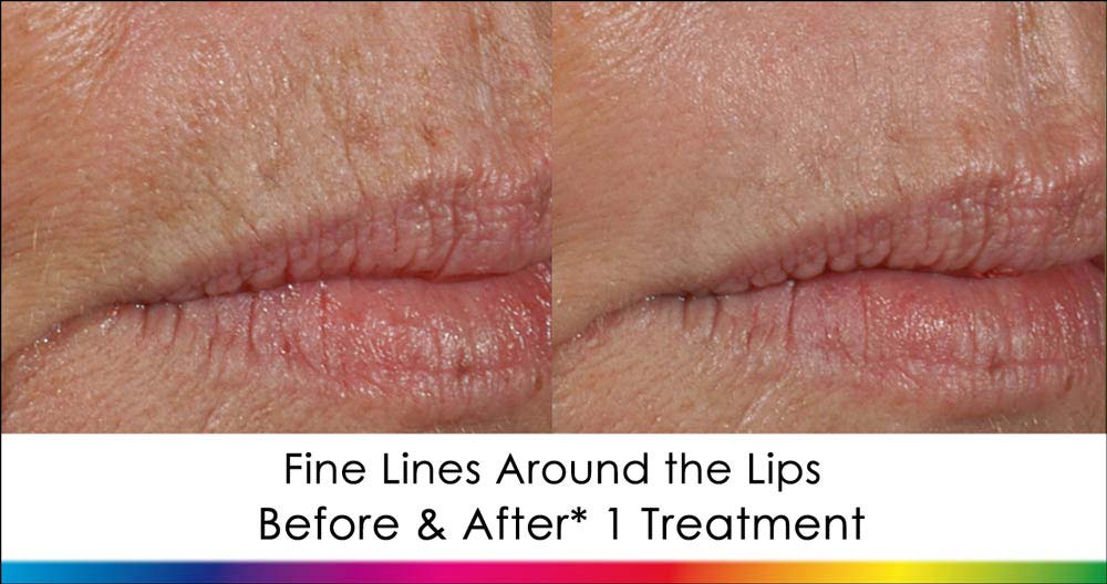 Laser Skin Resurfacing Before & After image