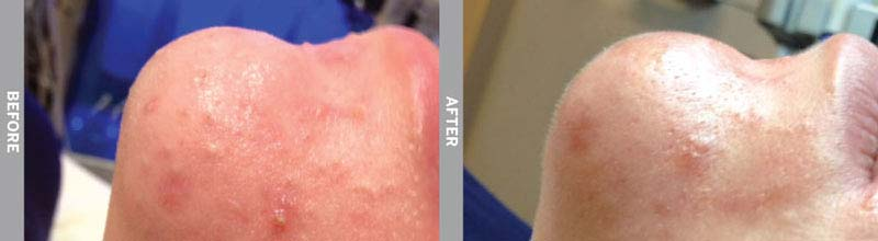 Hydra Facial Oily Skin Before & After