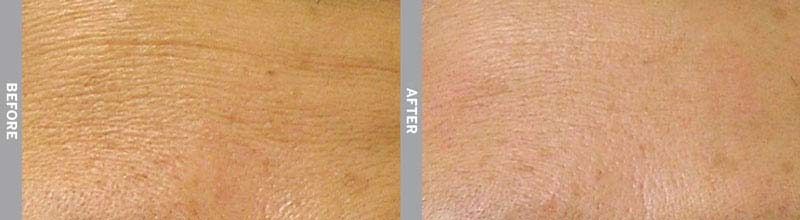 Hydra Facial Before & After Wrinkles St. Lucie