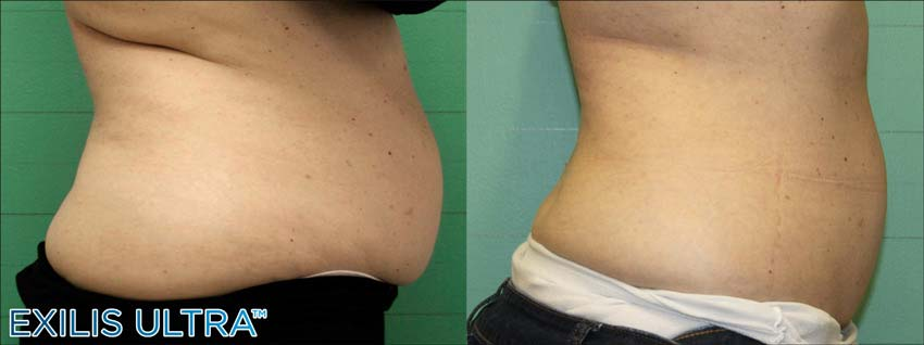 Exilis Ultra Body Sculpting Abdominal Region - Radiance St. Lucie