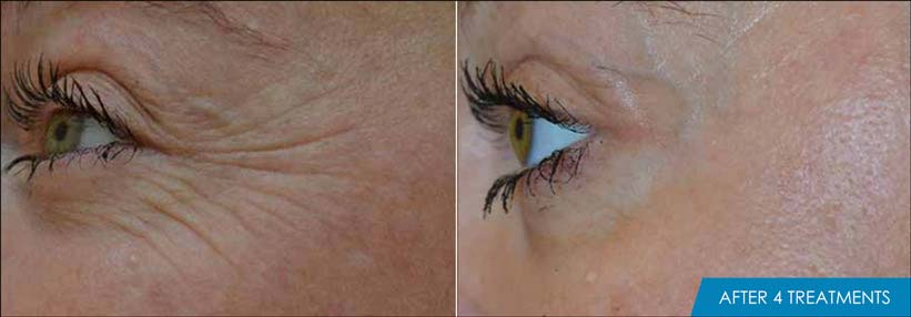 Exilis Ultra Eyes Before & After New Radiance St. Lucie