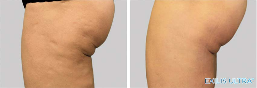 Exilis Leg Cellulite treatment before & After New Radiance