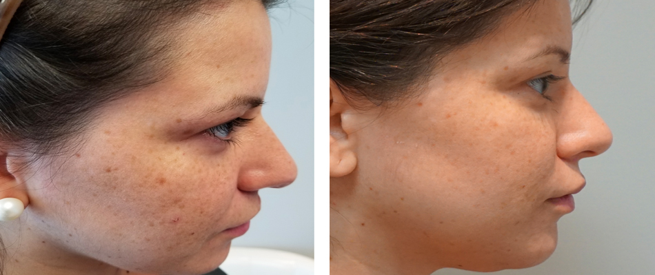 fractional co2 laser skin resurfacing before after face 2